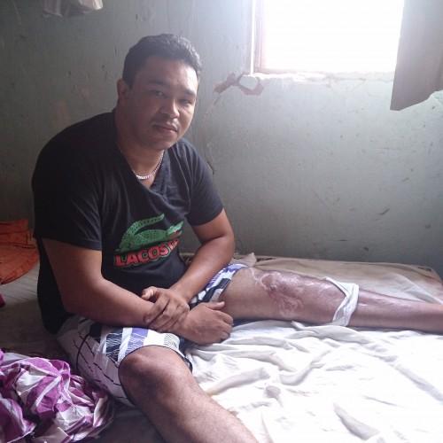 SIMÕES: Sem caminhar, jovem espera há dois anos por cirurgia do SUS
