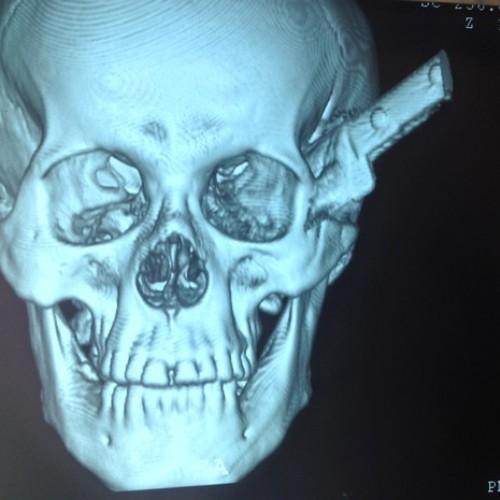 'Pensei que fosse morrer', diz homem que teve faca cravada na cabeça