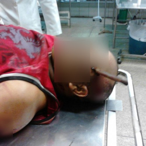 Após briga, homem fica com faca cravada na cabeça em município do PI