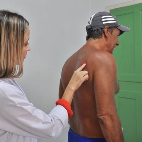 Boletim aponta 901 casos de hanseníase no Piauí em 2015