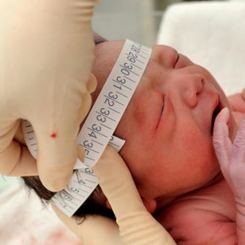 Vírus bovino é encontrado em tecidos de bebês com microcefalia