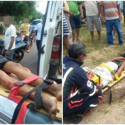 Colisão entre motocicleta e carro deixa jovens gravemente feridos