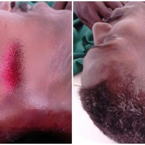 Briga entre primos acaba em morte a golpe de foice no interior de Simões
