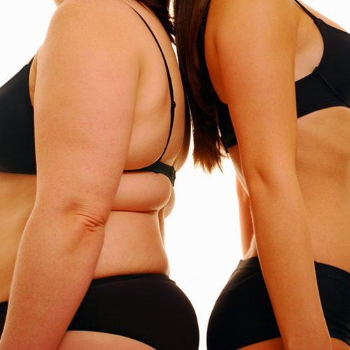 SAÚDE| Por que algumas pessoas voltam a engordar após a cirurgia bariátrica?