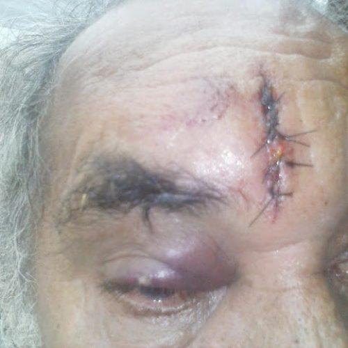 Sobrinho arremessa cadeira de ferro na cabeça de tio idoso no interior do Piauí