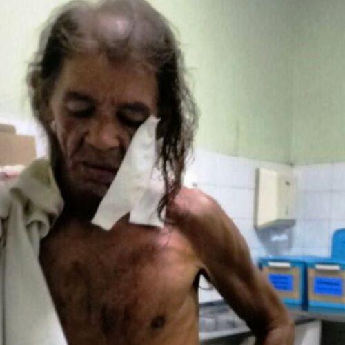 Idoso é atingido com dois tiros no rosto por rival no Piauí
