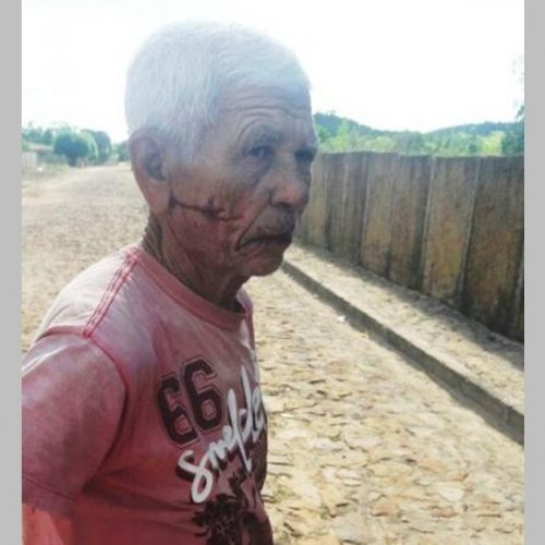 Idoso é espancado após ter casa invadida por assaltante no interior do Piauí