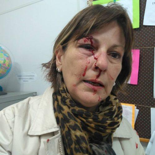 Professora é agredida com socos por aluno