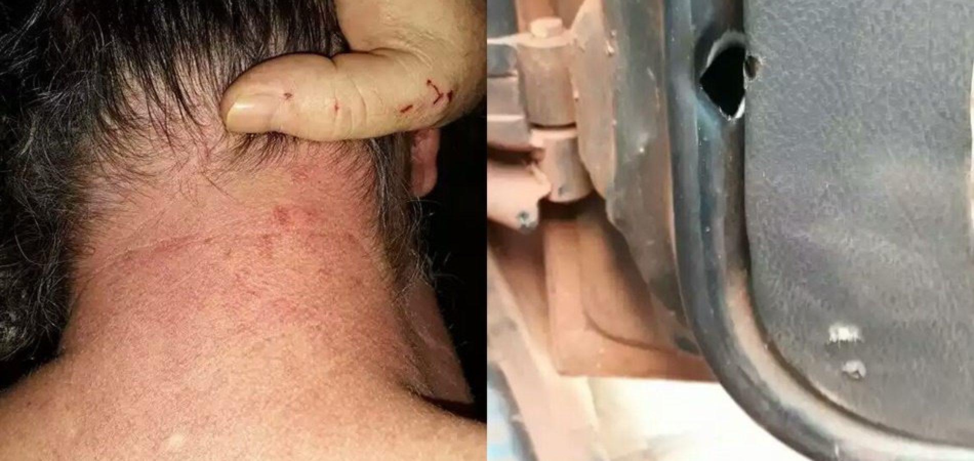 Segurança de prefeito agride e atira contra jornalista no Piauí