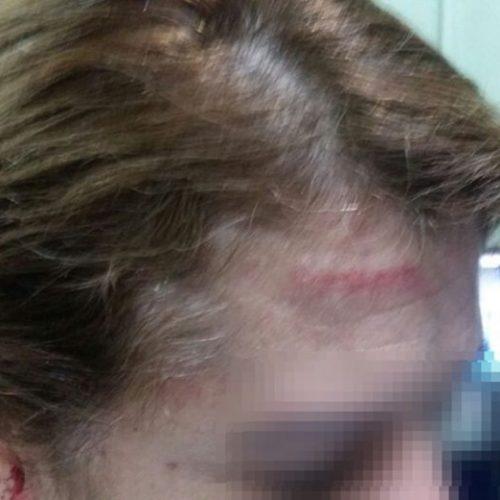 Diretora agredida por aluna no PI entrega cargo e aciona Estado na Justiça