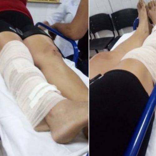 Mulher fratura a perna ao pular janela para fugir de criminosos no Piauí