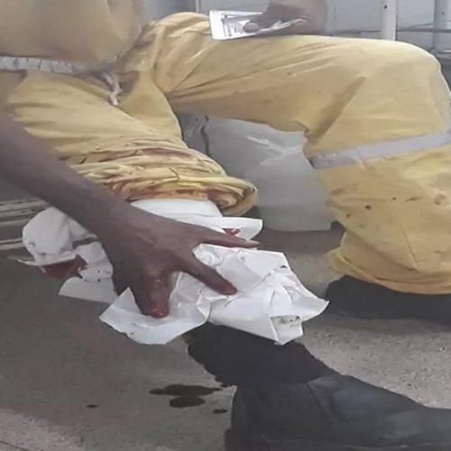 Gari se fere com cacos de vidro durante coleta e faz apelo em hospital: 'não descartem assim'