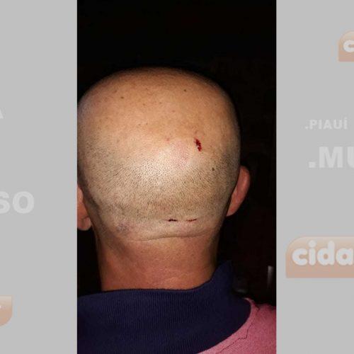 Homem denuncia que foi agredido por policias militares em cidade do Piauí