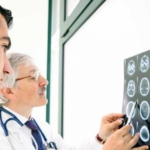 Ministério da Saúde cria linha de cuidados para tratar AVC