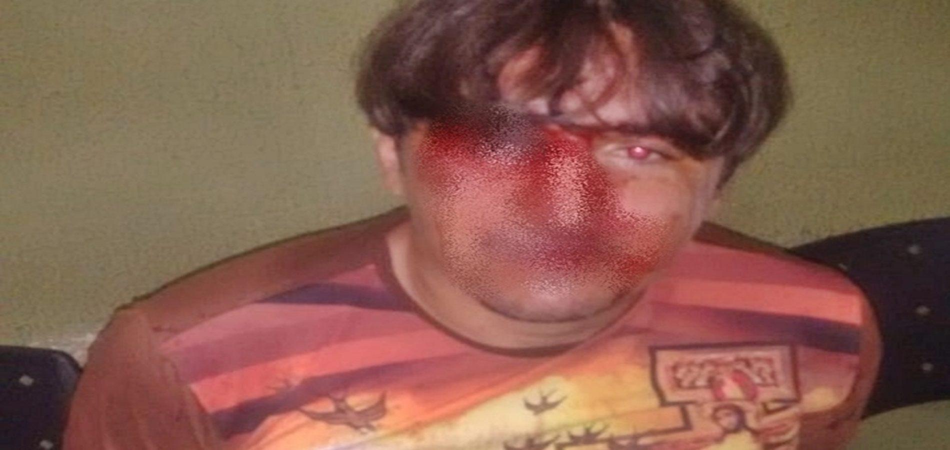 Após perseguição, suspeito é capturado pela vítima, e entregue a PM