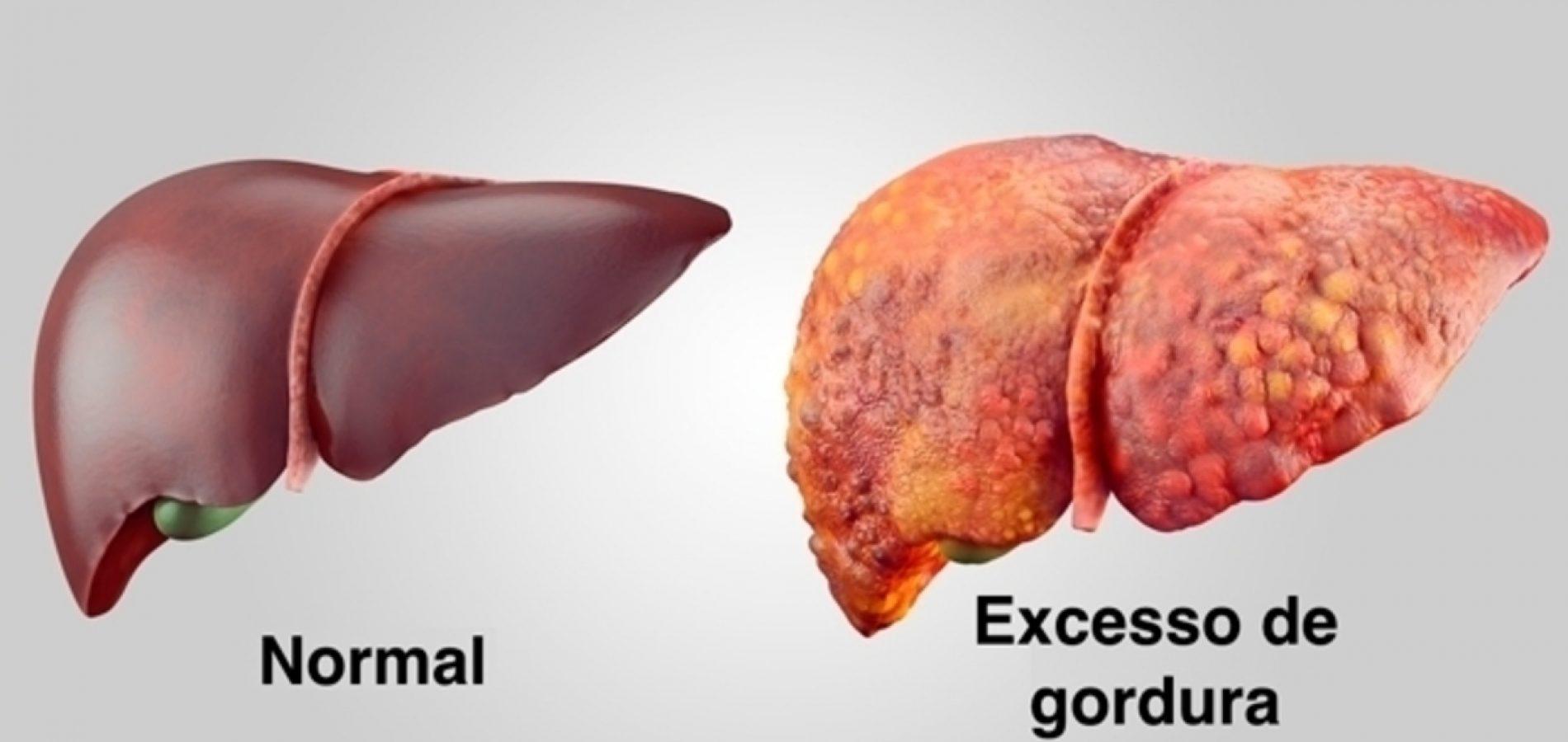 Veja como combater o excesso de gordura no fígado