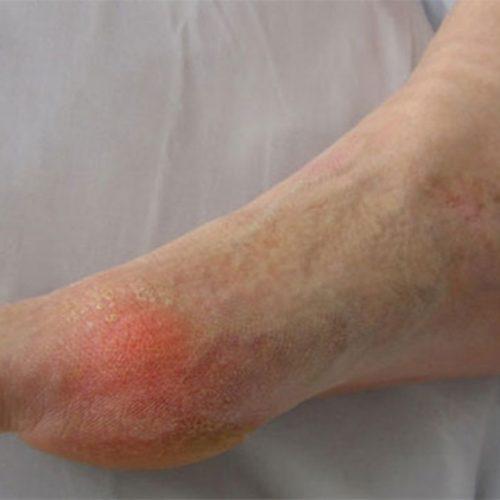Gota: conheça os detalhes dessa doença inflamatória