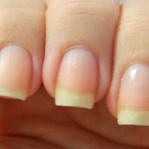 5 sinais de alerta sobre saúde que suas unhas dão; confira