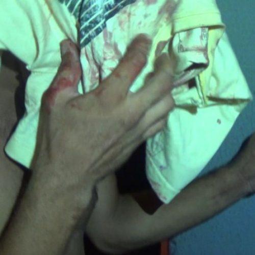 Morador de rua é esfaqueado durante discussão em Teresina
