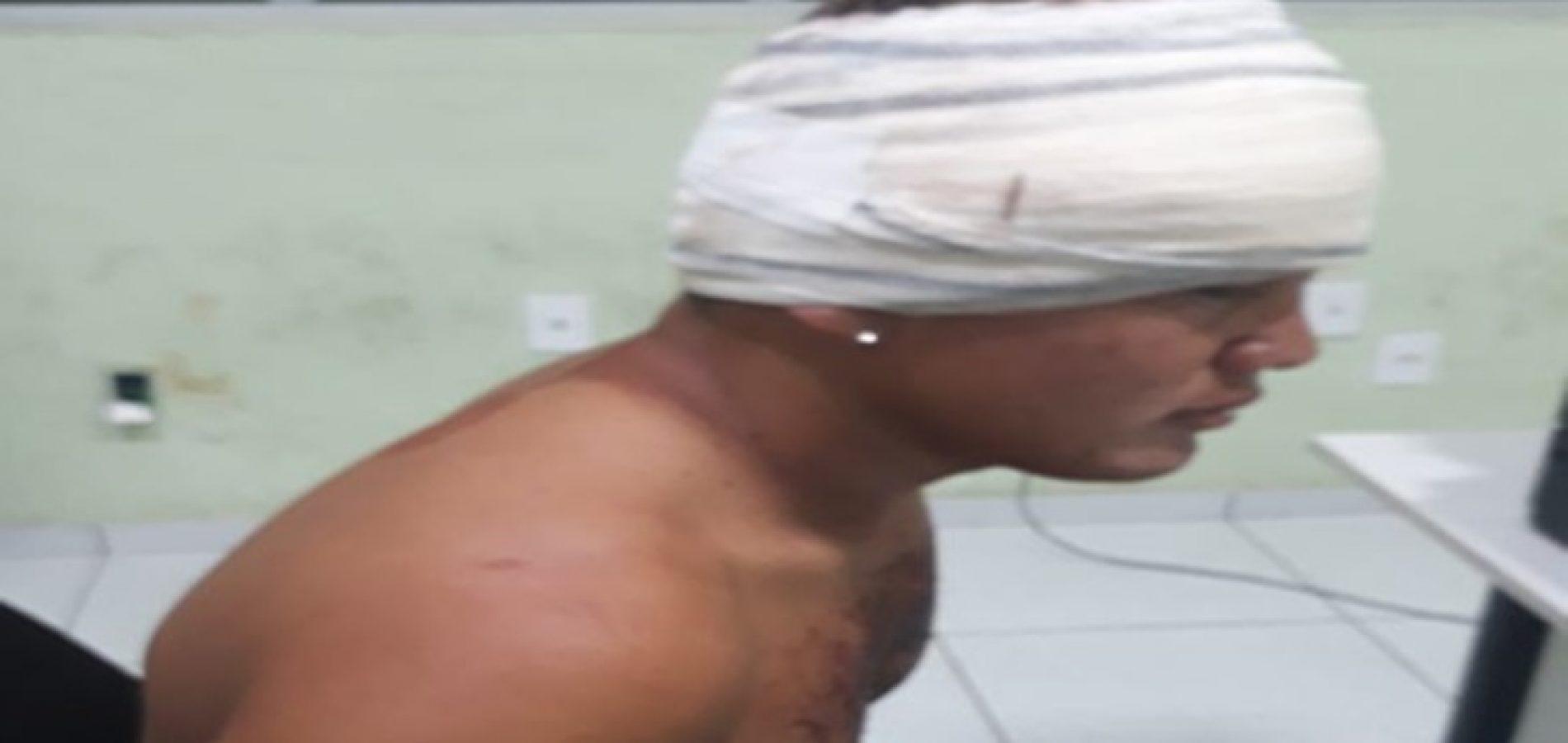 Jovem é atingido por garrafa na cabeça após agredir ex-companheira no Piauí