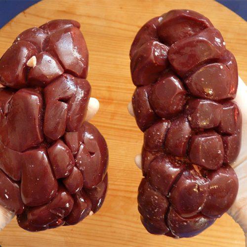Câncer no rim: causas, cuidados e mitos