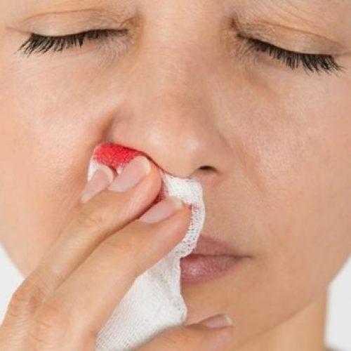 Sangramento nasal nem sempre tem relação com tempo seco