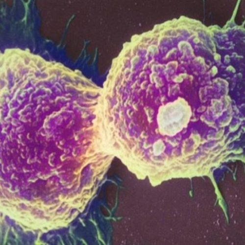 Brasil terá 625 mil novos casos de câncer por ano até 2022, diz Inca