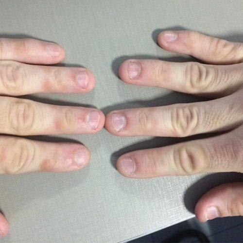 Roer unhas pode provocar infecções bacterianas