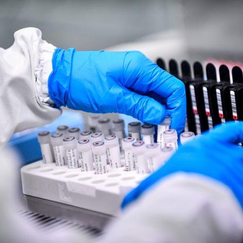 Número de casos confirmados de coronavírus sobe para 40 no Piauí; sete óbitos são registrados