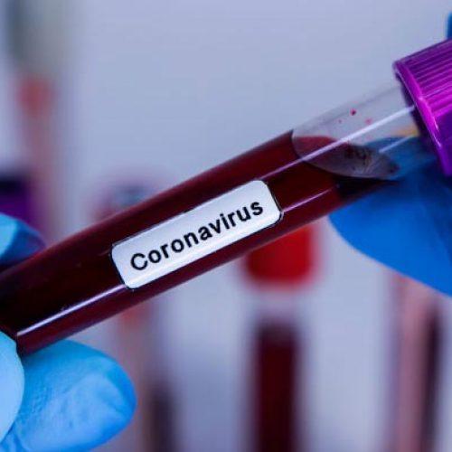 Primeiro caso positivo de Covid-19 é registrado em Santana do Piauí