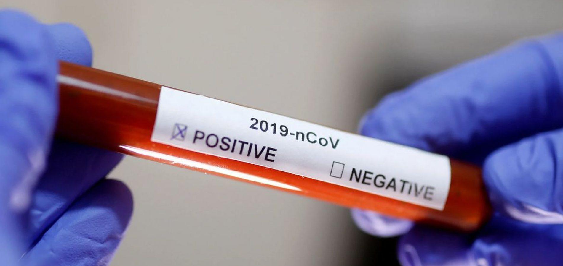 Profissional da saúde testa positivo para Covid-19 em Fronteiras
