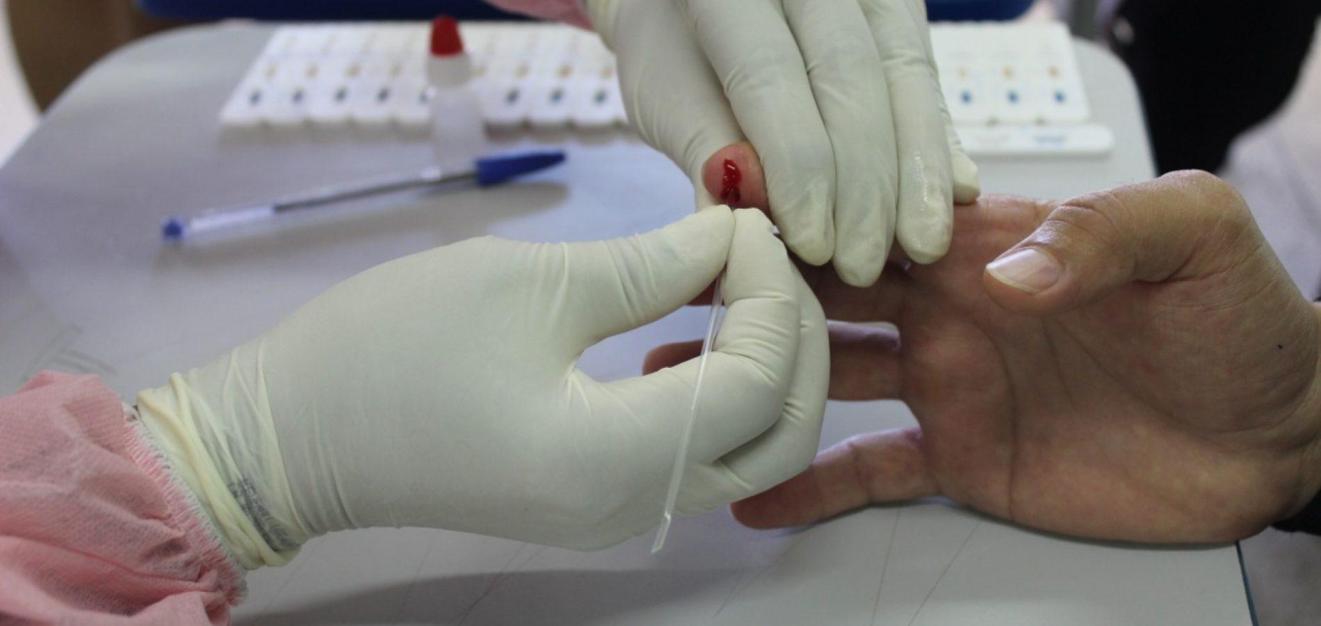 Mais dois casos de coronavírus são confirmados em Caldeirão Grande do Piauí