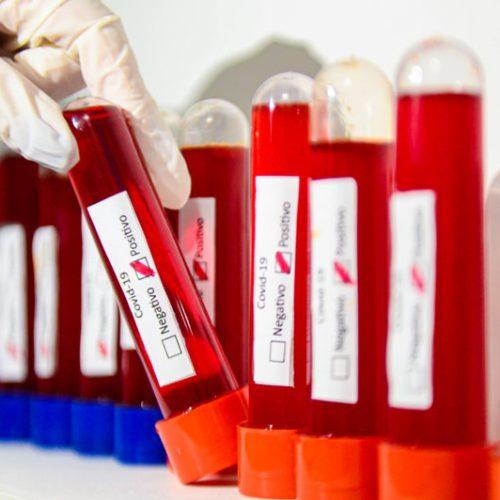 Covid-19: Médico diz que pacientes sem sintomas não devem ser medicados