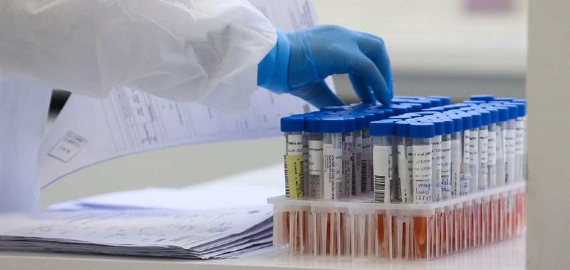 Fronteiras chega a 100 casos positivos de coronavírus