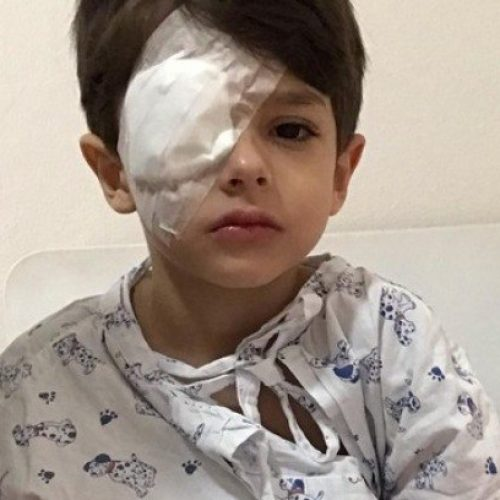 Após acidente, menino de 5 anos tem córnea queimada por álcool em gel