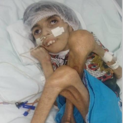 Adolescente com paralisia cerebral é internada com Covid-19 e precisa de ajuda em Teresina