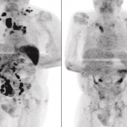 Após contrair Covid-19, homem tem redução de câncer em estágio avançado