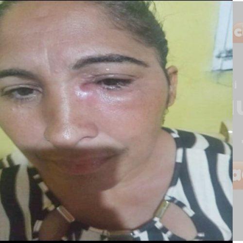 Campanha busca ajuda para mulher de Campo Grande do Piauí que precisa de cirurgia urgente